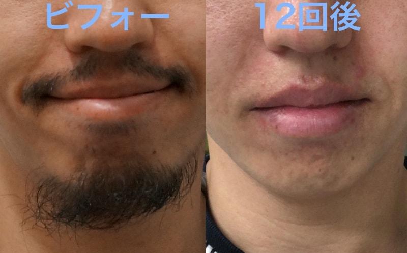 湘南美容外科髭脱毛ビフォーアフター