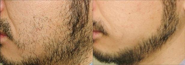 men's TBCの髭脱毛のビフォーアフター