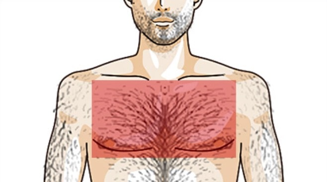 ゴリラクリニック 脱毛部位 胸