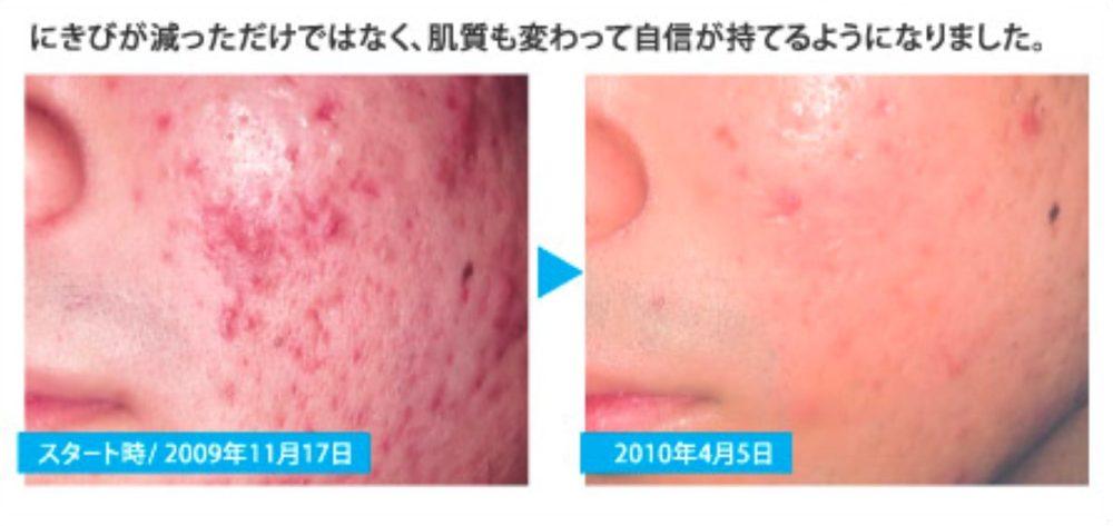 エルセーヌMEN 光フェイシャル 公式サイトモニター画像 ニキビ