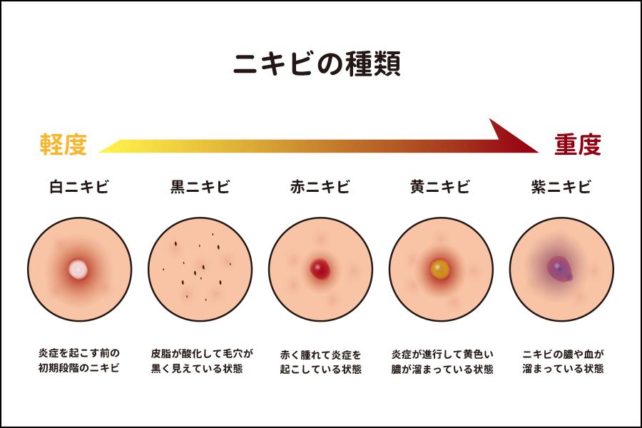 ニキビの種類別症状