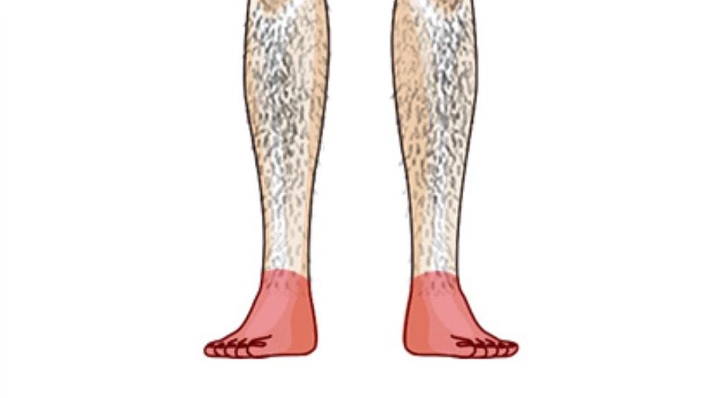 ゴリラクリニック 脱毛部位 足背・足指