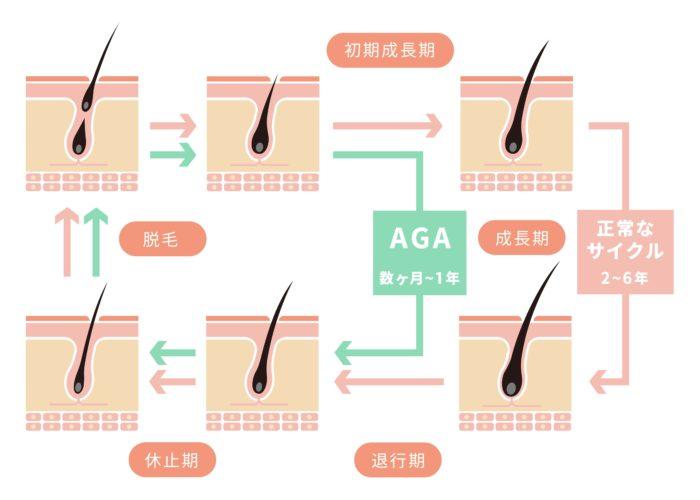 AGAの症状のヘアサイクル