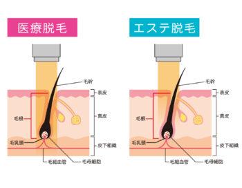 医療脱毛とエステ脱毛の比較断面図