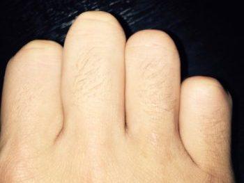 指の毛を除毛する前の状態