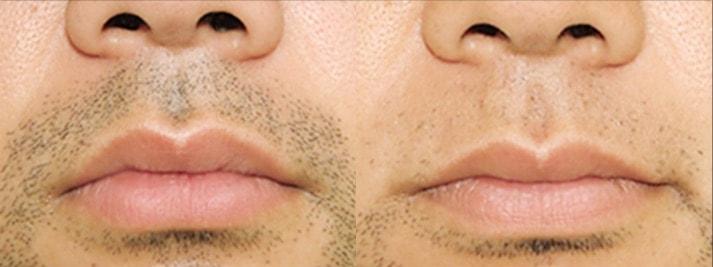 men's TBCの口髭脱毛のビフォーアフター