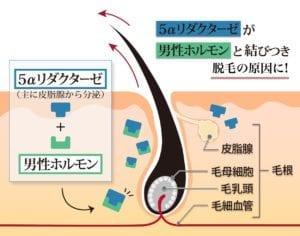 脱毛(AGA)の原因は5αリダクターゼと男性ホルモンが結びつくことで起こる解説図