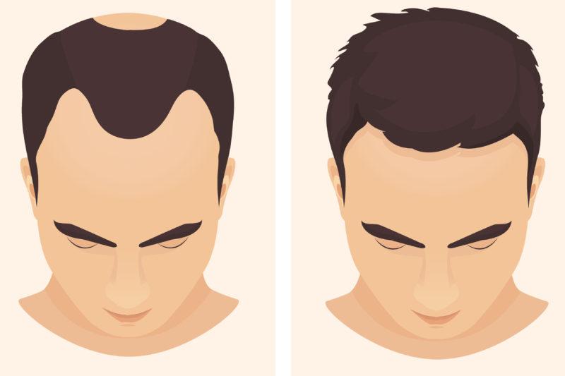薄毛の男性のビフォーアフター