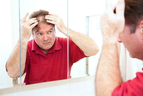 髪が抜けるのを気にしている男性