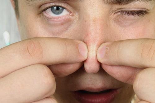 鼻の角栓を取る男性