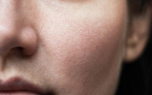 男性の頬の毛穴